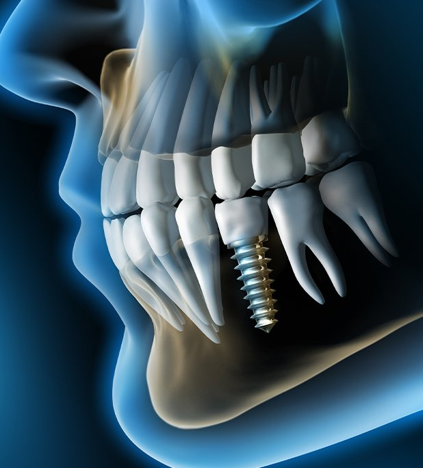 Loose implants, bridges, and crowns