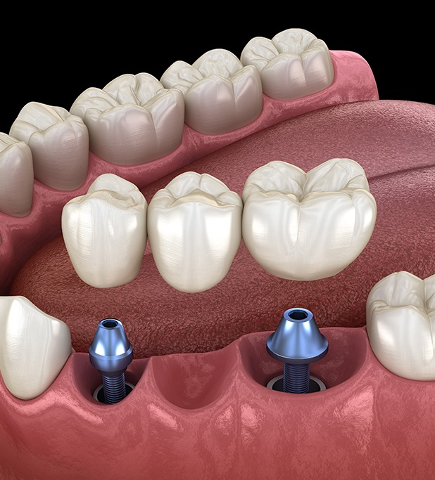 model implant-retained bridge