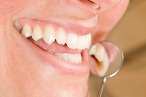 A dentist in Orlando you can turn to for significant smile improvements.