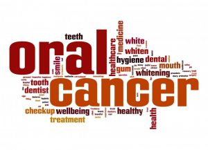 words associated with oral cancer