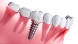 Model of a dental implant in the lower jaw