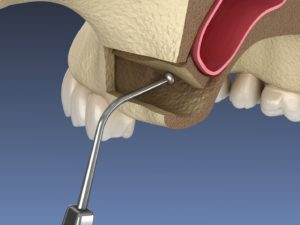 3D illustration of sinus lift procedure against neutral background
