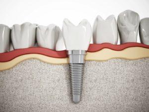 Illustration of dental implant in jaw after bone graft