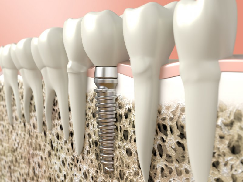 Render of a dental implant next to natural teeth
